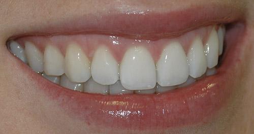 dentisito